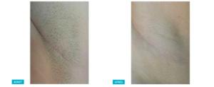 resultats d'épilation laser femme
