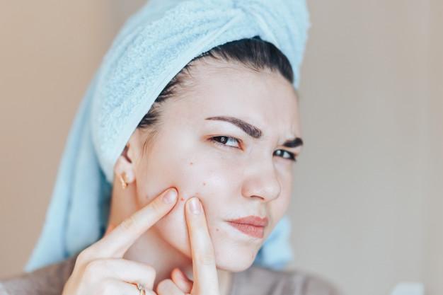 Traitement laser pour les cicatrices d'acné