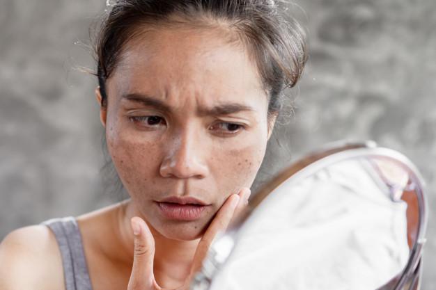 traiter le melasma ou hyperpigmentation hormonale